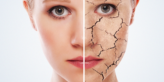 Os fundamentos de uma pele seca