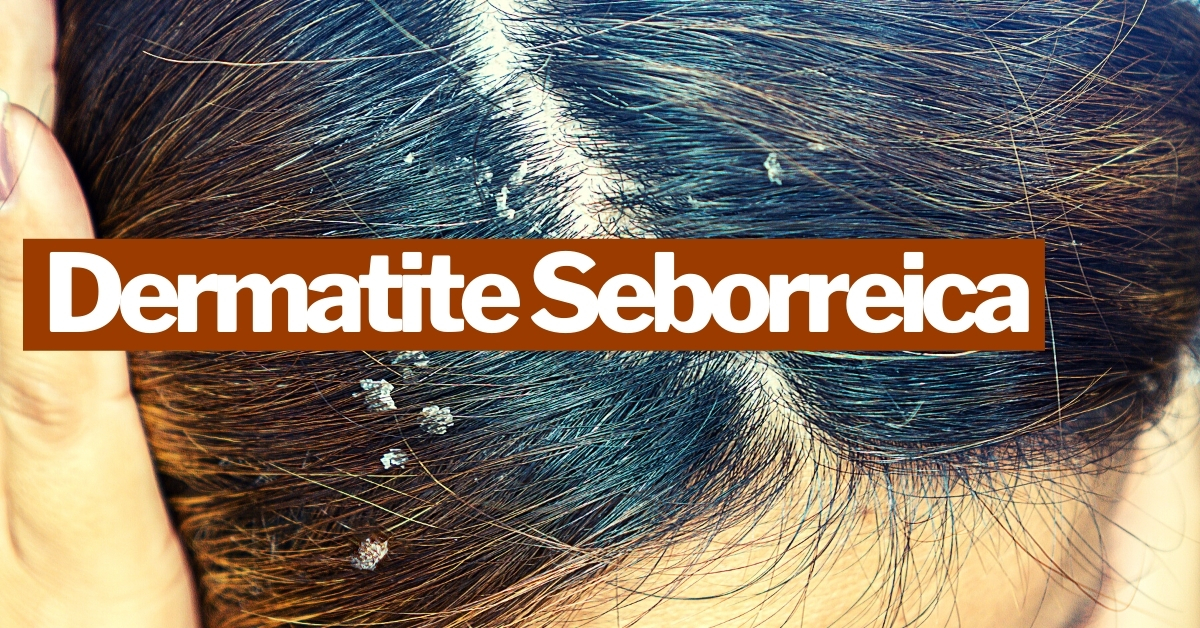 Dermatite Seborreica: causas e sintomas