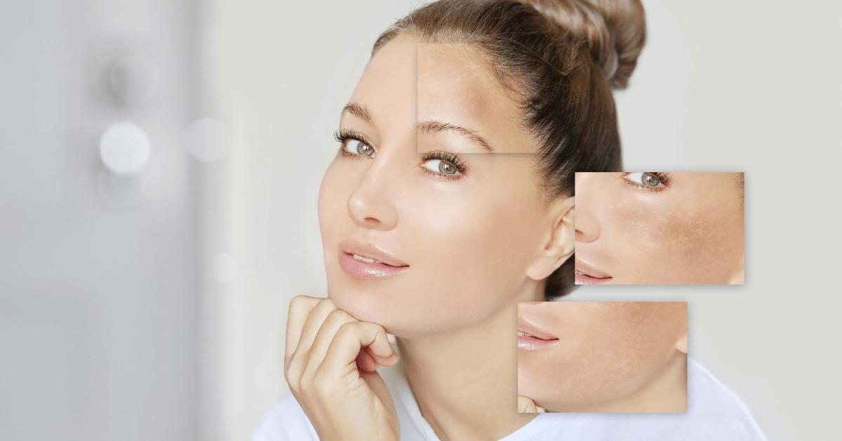 Como é o tratamento de manchas e por que é a longo prazo?