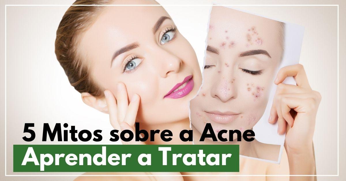 5 mitos sobre a acne desvendando para aprender a tratar